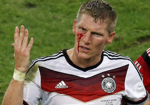 This is what he looked like just before Germany won the World Cup.